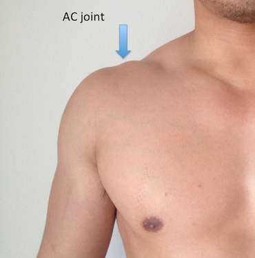 AC Joint - Fit As A Physio | Mosman